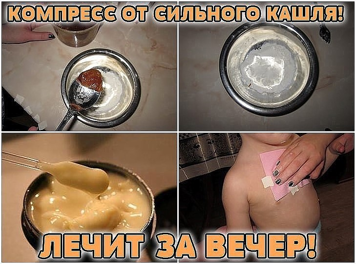 КОМПРЕСС ОТ СИЛЬНОГО КАШЛЯ фото