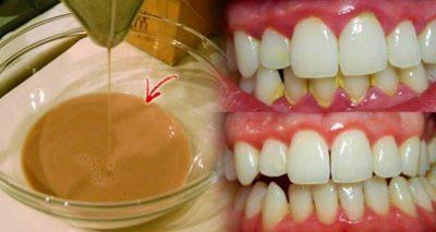 Зубной налет - это липкая бесцветная пленка бактерий, которая образуется на зубах. Это основная причина возникновения кариеса и заболевания десен и может затвердевать в зубной камень, если не удалять ее ежедневно.  Жидкость для полоскания рта является одной из жизненно важных составляющих процедуры гигиены полости рта. Она также делает ротовую полость чистой, а дыхание свежим.  Вот домашний рецепт для полоскания рта, который является эффективным и недорогим, основанным на пищевой соде.  Бикабонат натрия обладает мощными свойствами отбеливания и удаления пятен, поэтому его часто используют для чистки зубов. Кроме того, он обладает антибактериальной способностью, которая устраняет зубной камень и микробы, которые являются причиной кариеса и неприятного запаха изо рта. Вот как подготовить это средство для полоскания рта:  Состав: 1 столовая ложка пищевой соды ½ чайной ложки соли ½ стакана перекиси водорода 1 стакан холодной воды ½ стакана теплой воды зубная щетка зубочистки  Приготволение: Вы должны смешать соль и пищевую соду, а затем намочить зубную щетку в теплой воде. Окуните щетку в смесь и протрите зубы. Затем выплюньте. Повторите это в течение двух минут.  Затем смешайте пероксид водорода с теплой водой и используйте этот раствор для полоскания рта в течение минуты. Затем выплюньте. В конце используйте зубочистку, чтобы удалить зубной камень между зубами. Промойте ротовую полость холодной водой.  Дополнительные советы: Помните, что вы никогда не должны глотать жидкость для полоскания рта, так как она может содержать вредные ингредиенты.  Удостоверьтесь, что вы чистите зубы, по крайней мере, три раза в день качественной зубной пастой.  Острая пища стимулирует работу слюнных желез, а слюна естественным образом дезинфицирует полость рта.