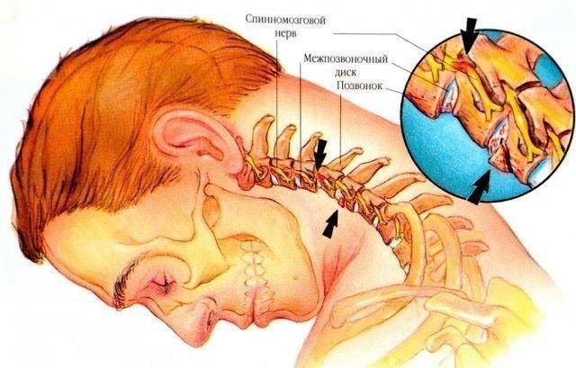 Шейный остеохондроз – весьма опасный недуг, который проявляется болями в спине, частыми мигренями, головокружением, «мушками» в глазах