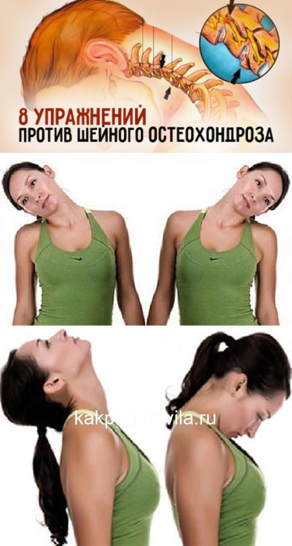 Шейный остеохондроз – весьма опасный недуг, который проявляется болями в спине, частыми мигренями, головокружением, «мушками» в глазах...