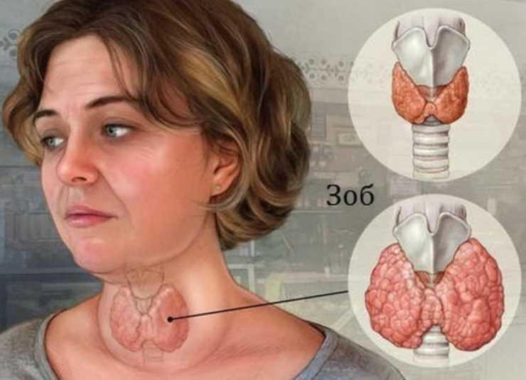 Ранней весной накопала корни одуванчика и избежала удаления щитовидки 1