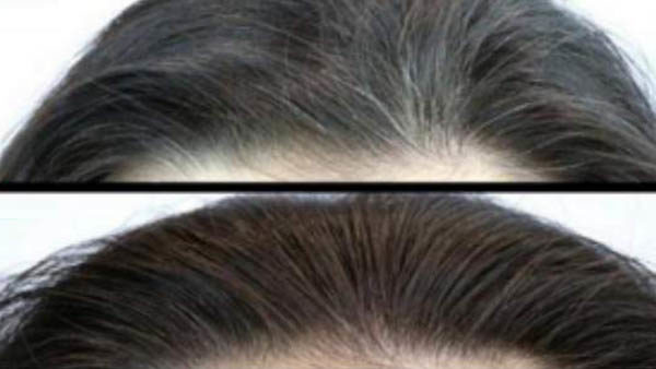 magical-drink-to-reverse-white-hair