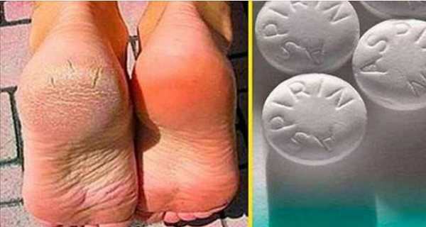it-cures-varicose-veins-corns-and-cracked-heels-in-just-10-days