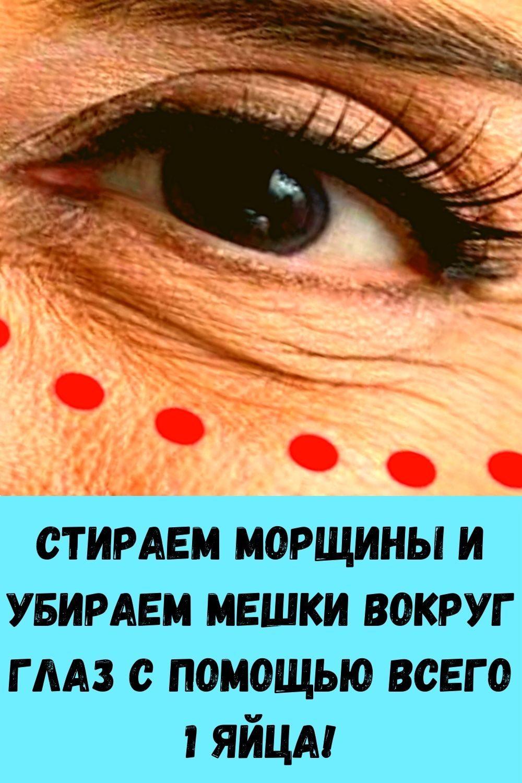 kak-razmnozhit-gortenziyu-cherenkami-poshagovaya-instruktsiya-dlya-novichkov-14