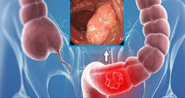 this-oil-destroys-colon-cancer-cells-but-only-few-people-know-this-1