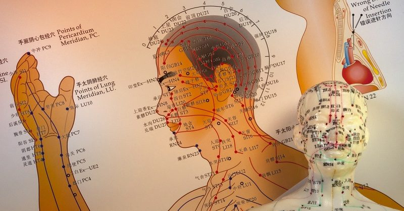 traditional-chinese-acupuncture-2