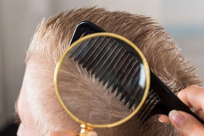 doctor-looking-at-patient-s-hair-through-magnifying-glass