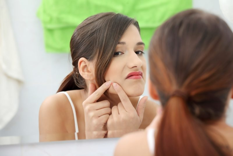 young-teenage-woman-with-pimple